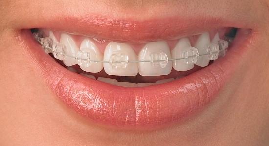 Aparelho Dentário: como funciona